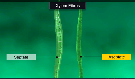 What is the difference between septate and aseptate xylem ...